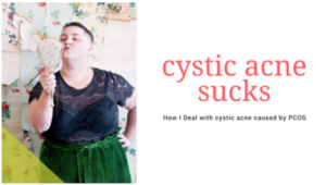 tips for Cystic Acne caused by PCOS